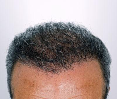corrective hair transplants raleigh nc