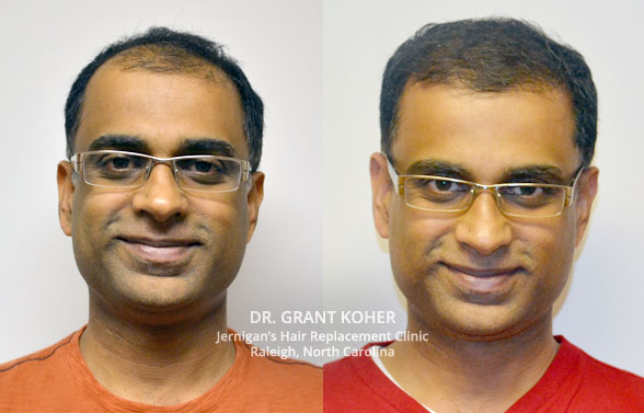 hair loss restoration transplant raleigh nc
