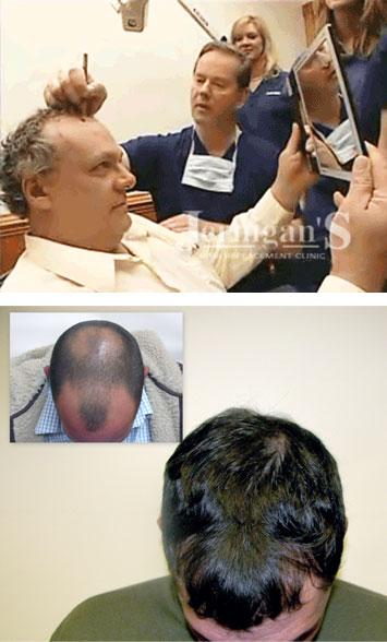 Koher Hair Transplants Raleigh NC