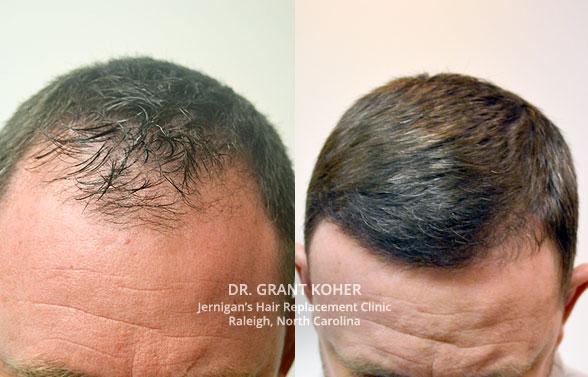 Mens hair loss replacement restoration Burlington Vermont