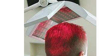laser hair loss treatment therapy raleigh nc