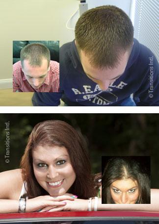 LLLT laser hair regrowth rejuvenation raleigh nc