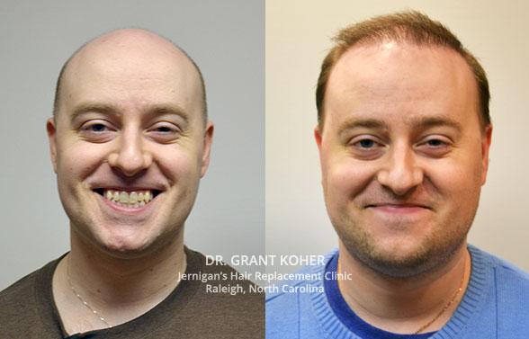 mens hair restoration raleigh north carolina