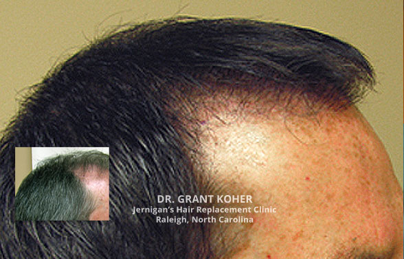 Koher hair transplant clinic. Jernigans Raleigh NC