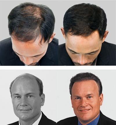 ARTAS Hair Transplantation in Alexandria Virginia