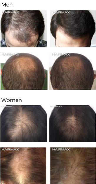 fda cleared hair loss treatment androgenetic alopecia raleigh nc
